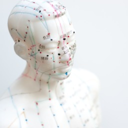 Acupuncture and Cupping for Pain